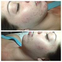 Clear Beauty Skincare and Acne Clinic